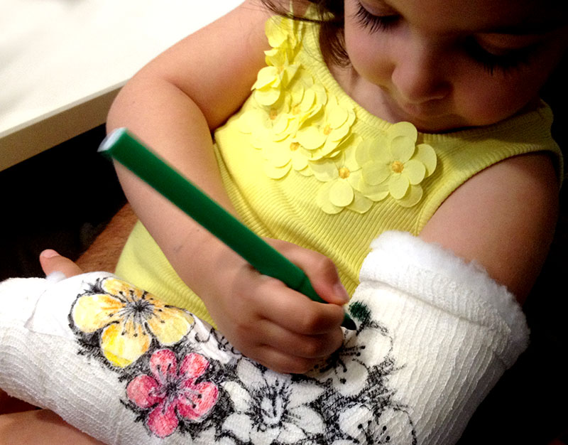 bimba con gesso braccio frattura biossea e tatuaggio fashion con fiori colorati