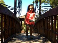 bimba al parco con gesso al braccio che gioca su altalena e ponti di legno con canotta fluo e short in felpa di cotone animalier, occhiali da sole, braccialetto e sneakers con borchie